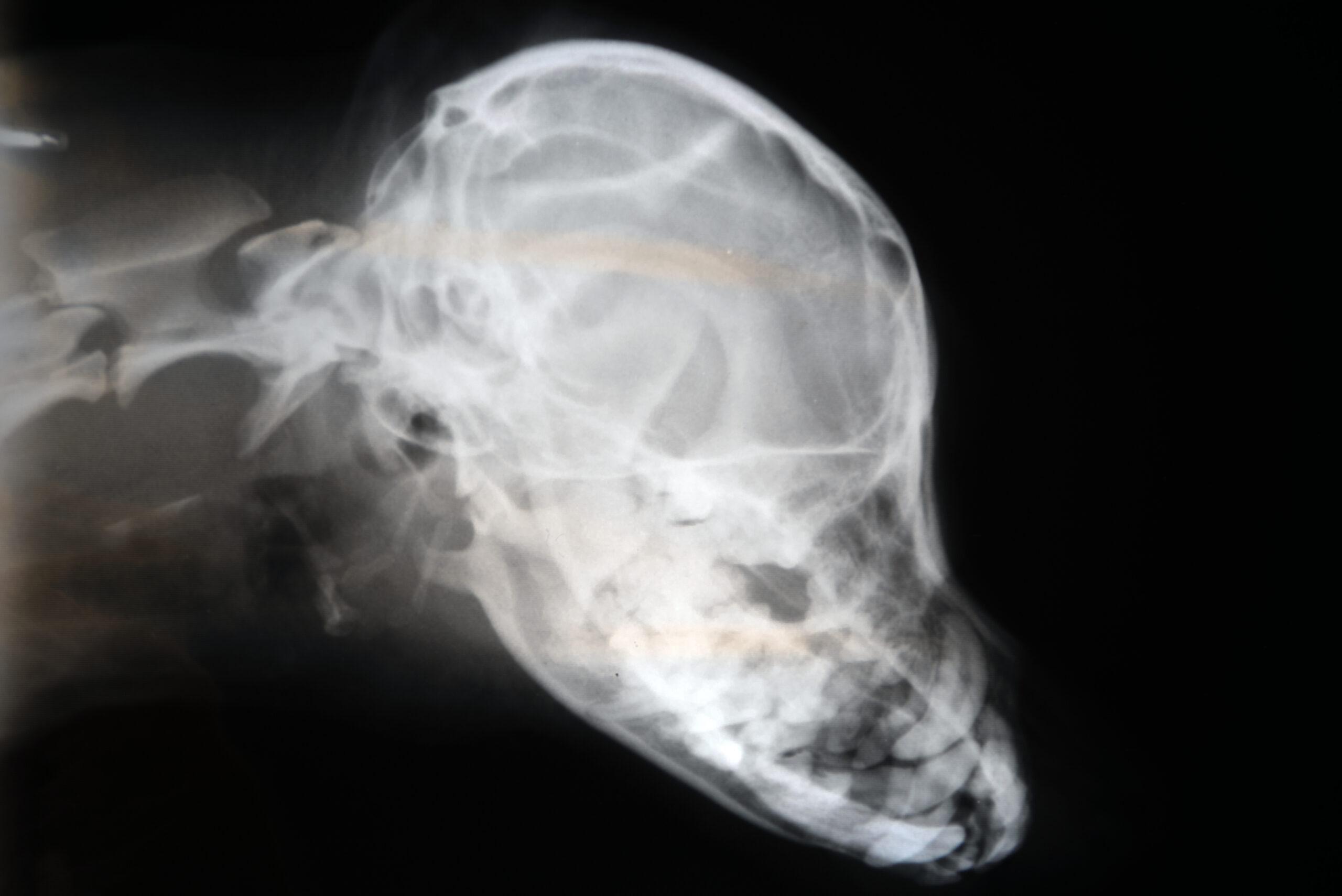 Importancia de la radiología intraoral